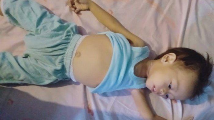 Idap Talasemia dan Leukemia, Bocah 2 Tahun di Lampung Selatan Butuh Uluran Tangan
