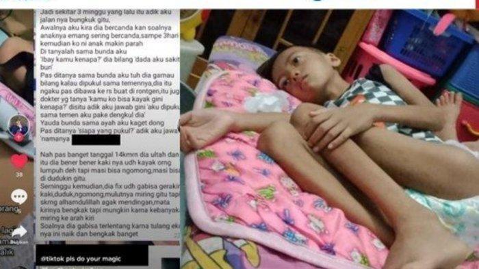 Viral Bocah SD Lumpuh Akibat Dipukul Temannya Pakai Dengkul