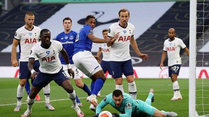 Piala FA,Everton vs Tottenham, Anceloti Dihantui Cedera Sang Gelandang James Rodriguez