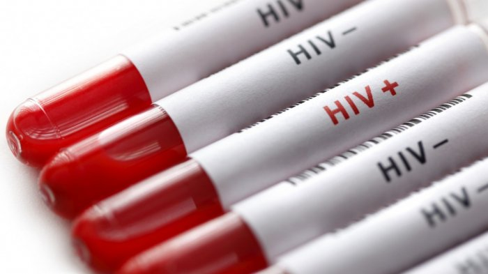 24 Warga Tulangbawang Idap HIV, Salah Satunya Ibu Hamil