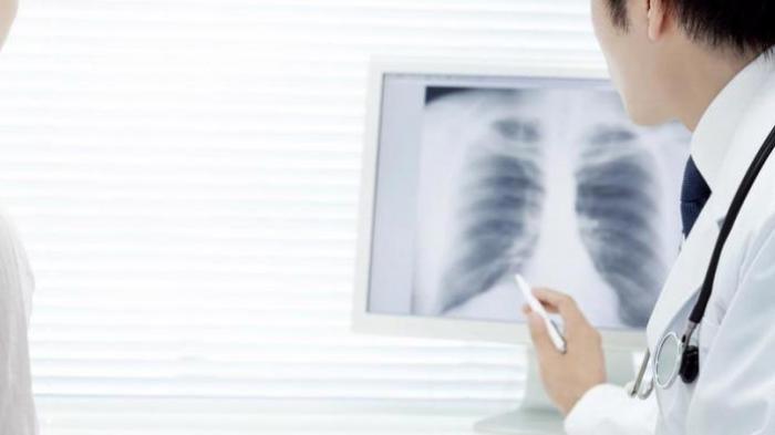 AC dan Kipas Angin Menyebabkan Paru-paru Basah?
