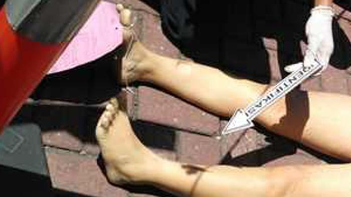 Perawat Pasien Covid-19 Banjarbaru Ditemukan Tewas dengan Luka Tusuk di Kamar Mandi