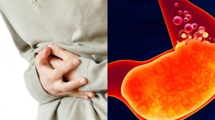 Soal Larangan Obat Asam Lambung Pemicu Kanker, Diskes: Tunggu Surat BPOM