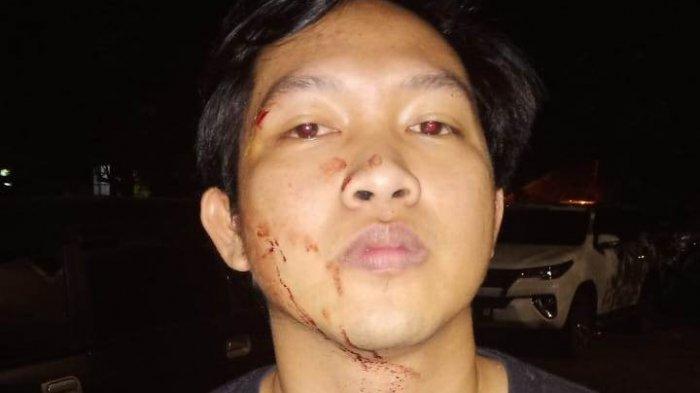 Penganiayaan Jurnalis di Bandar Lampung Dipicu Masalah Asmara