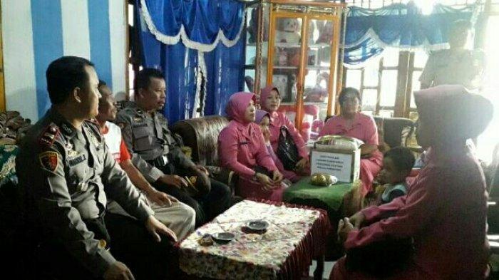 Polsek Pulau Panggung dan Bhayangkari Serahkan Bantuan ke Atizah, Balita Penderita Hidrosefalus