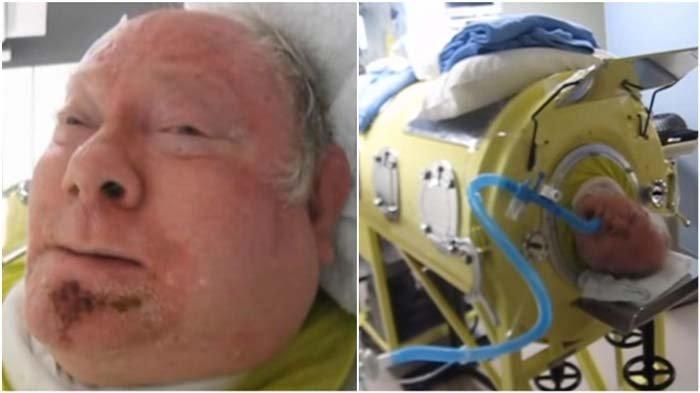 Meskipun Tak Lagi Diproduksi, Pria Ini Hidup di Paru-paru Besi Selama 65 Tahun karena Idap Polio