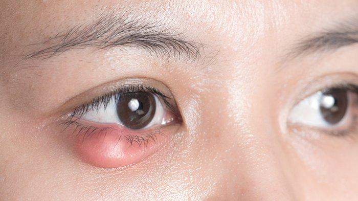 Penyebab dan Gejala Penyakit Blefaritis atau Bintitan