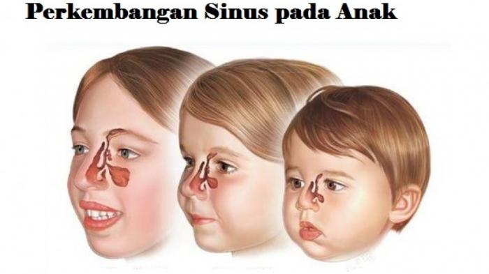 Halo Dokter, Apa Itu Sinusitis dan Seperti Apa Gejalanya?