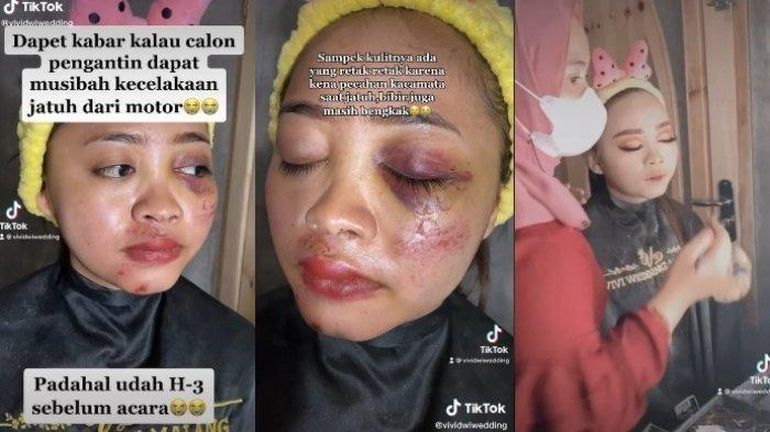Viral Pengantin Wanita Wajahnya Lebam karena Kecelakaan