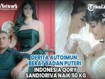 idap-autoimun-berat-badan-puteri-indonesia-qory-sandioriva-naik-50-kg.jpg