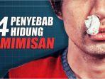 penyebab-hidung-mimisan_20181012_162516.jpg