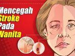 stroke-pada-wanita_20180903_142736.jpg