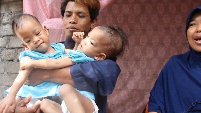 Operasi Pemisahan Bayi Kembar Siam asal Lombok Timur, Anaya dan Inaya Libatkan 90 Dokter