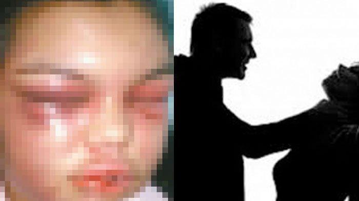 Sadis, Suami Posesif Hajar Istri Tiap Dapat Like di Facebook (FB), Rutin Disiksa Sampai Wajah Rusak
