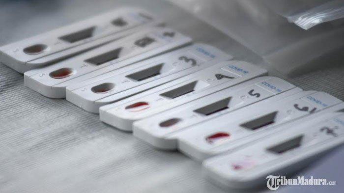 Pasien Covid-19 di Kota Batu Meninggal Dunia, Orang Terdekat Jalani Rapid Test, Ada yang Reaktif