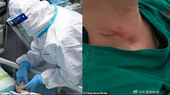Dua Dokter ini Bernasib Miris Usai Nyawa Pasien Terjangkit Virus Corona yang Ditangani Tak Tertolong