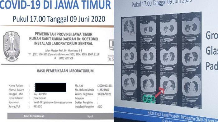Driver Ojol Wanita Korban Jambret di Surabaya Positif Corona, Keluarga Sempat Tak Terima Diagnosa RS