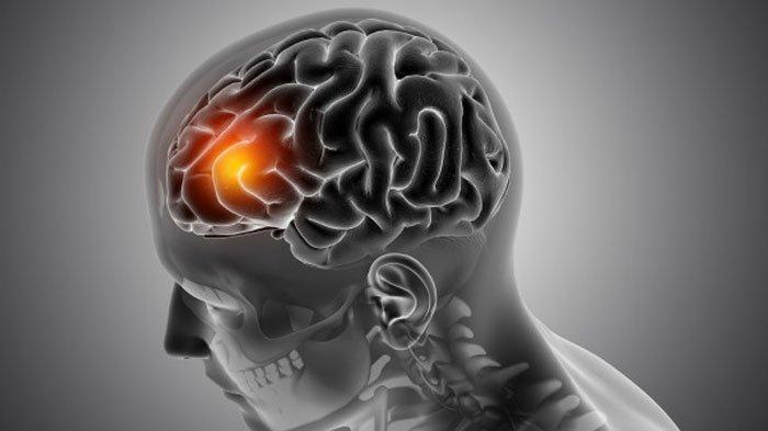 Pemicu Kanker Otak Selain Genetik ada Gaya Hidup, Simak Penjelasan Dokter Ahli, Radiasi Termasuk