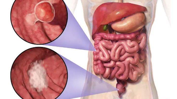Kenali Gejala Umum Kanker Usus, Cegah Penyakit dengan Deteksi Dini Berikut