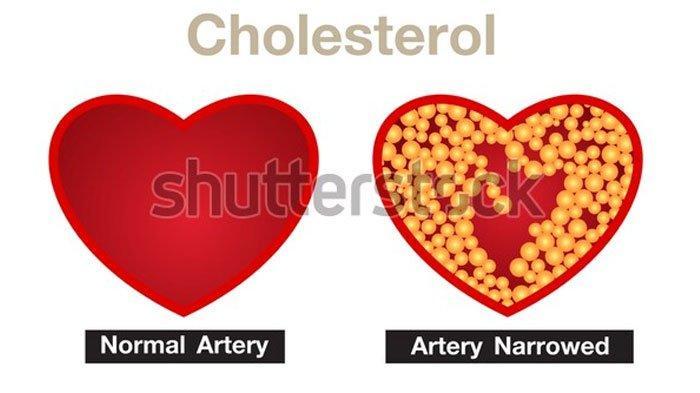 Cara Mudah Turunkan Kadar Kolesterol dalam Tubuh, Dibiarkan Bisa Sebabkan Banyak Penyakit Berbahaya