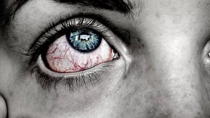 Bukan Hanya Sulit Bernapas dan Batuk Kering, Mata Merah Disebut Bisa Jadi Gejala Utama Covid-19
