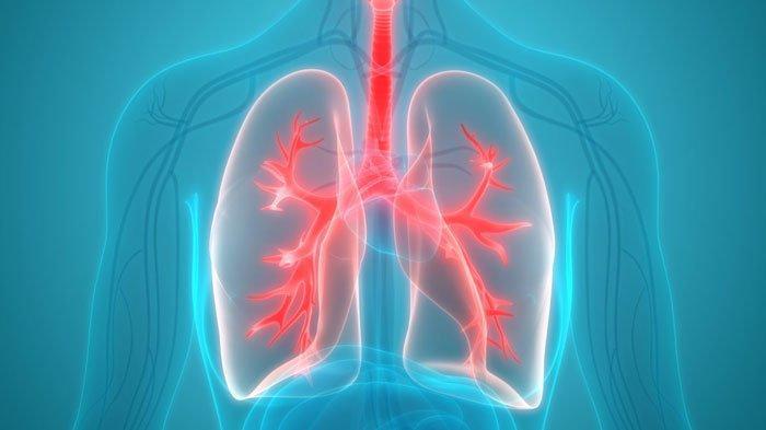 Punya Gejala Mirip, Ternyata Ini Perbedaan Pneumonia dan Infeksi Covid-19: Waspada Muncul Ruam Kulit