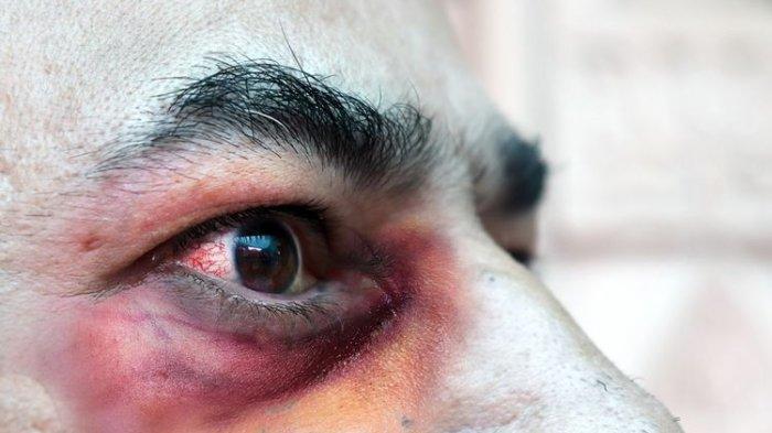 Simak Gejala Penyakit Jamur Hitam Pasca-Covid-19, Penderita Mengalami Wajah Membengkak hingga Muntah