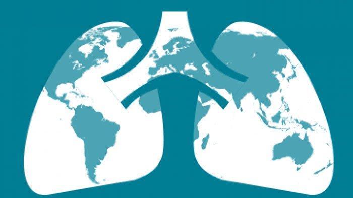 Kasus TBC di Sumenep Rangking Pertama di Jatim, Pada Tahun 2020 Ditemukan 1.667 Kasus