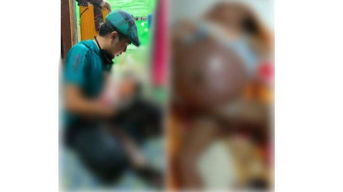 Bayi di Sampang Lahir Tanpa Anus, Kondisinya Memprihatinkan, Rintihannya Menyanyat Hati Sang Ibu