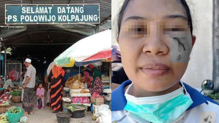 Warga Pamekasan Dianiaya Pedagang Kain di Pasar Kolpajung, Wajah Lebam setelah Ditonjok Karena Utang