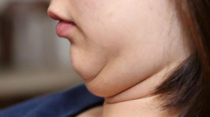 Gejala Anda Punya Kolesterol Tinggi, Ternyata Hal Berikut Jadi Pemicunya, Simak Cara Mengobatinya