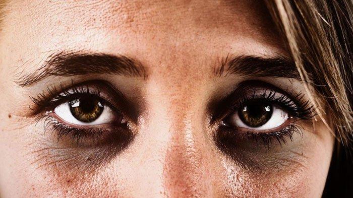 Sebabkan Mata Rusak, Lima Kebiasaan Buruk Ini Perlu Dihindari, Simak Solusi Pencegahannya