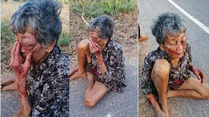 Kisah Pilu Nenek RentaDitemukanTerduduk di Pinggir Jalan,Kabur dari Rumah setelah Dianiaya Cucu