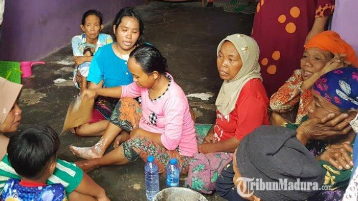 Pemilik toko sembako di Desa Essang, Kecamatan Talango Sumenep terbakar, Susi mengalami luka bakar pada bagian kakinya, Kamis (11/2/2021) pukul 08.00 WIB.