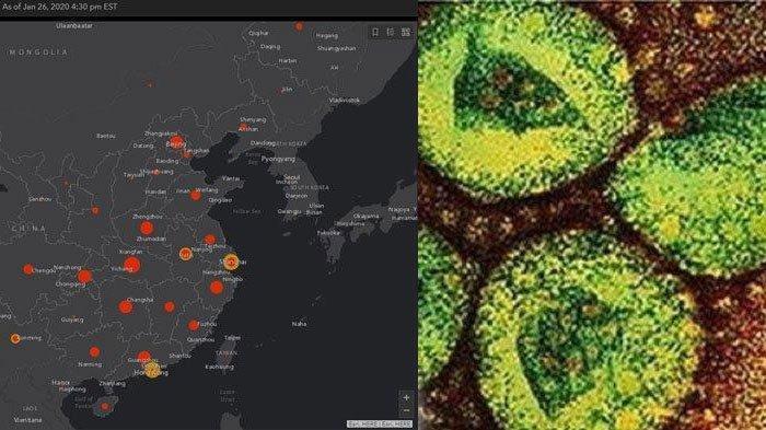Ada Fakta Mengerikan di Balik Warga Indonesia yang 'Kebal' dari Virus Corona, Simak Alasannya