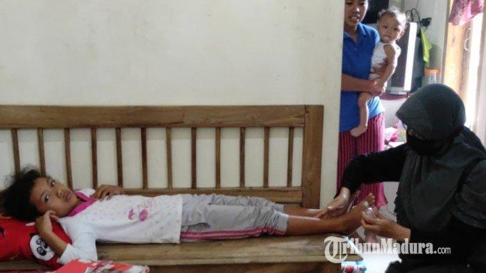Kisah Nazwa Eka, Bocah di Blitar yang Kakinya Memar Seusai Tertimpa Reruntuhan Atap Rumah Saat Gempa