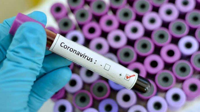 Dinkes Sumenep Belum Rapid Test KeluargaKaryawan Bank yang Positif Virus Corona, Ini Alasannya
