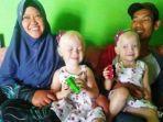 anak-kembar-albino-di-wonogiri-nadya-nur-azzahra-dan-nadira-nur-ainiyah-bersama-kedua-orangtuanya.jpg