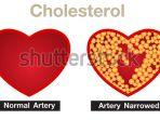 ilustrasi-kolesterol.jpg