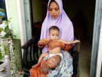 nur-anisa-maharani-bayi-7-bulan-di-pamekasan-menderita-tumor.jpg