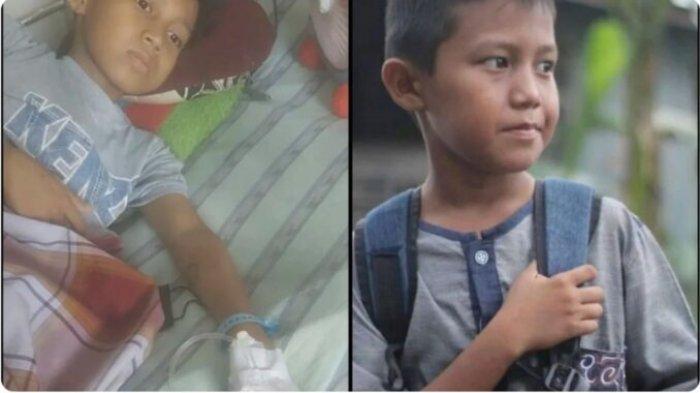 Bocah 11 Tahun Asal Parepare Derita Kanker Usus Besar, Butuh Uluran Tangan