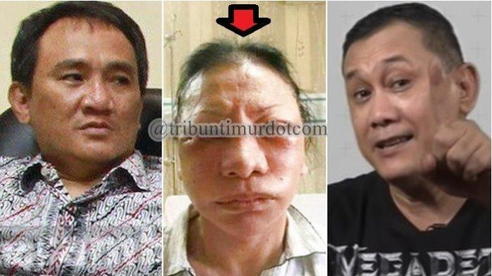 Denny Siregar vs Andi Arief: Kasus Sumbangan Rp 2 T Akidi Tio vs Prank Wajah Lebam Ratna Sarumpaet