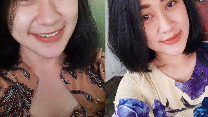 Foto-foto EvaSofiana, Perawat Cantik Asal Malang Dibakar Pria Misterius, Akun IG-nya Banjir Doa