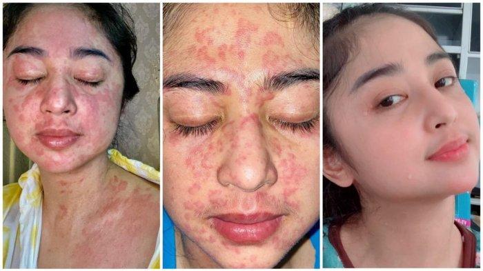 Dewi Perssik Curhat Penderitaan Terinfeksi Covid-19, Muka hingga Dada Merah, Sesak dan Batuk