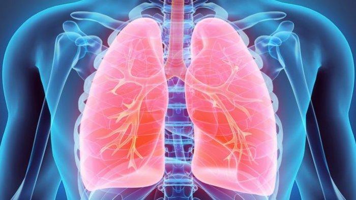 5 Bahan Alami untuk Membersihkan Paru-paru