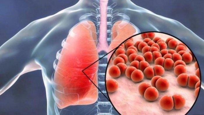 8 Gejala Seseorang Alami Pneumonia, Segera Periksakan Diri ke Dokter