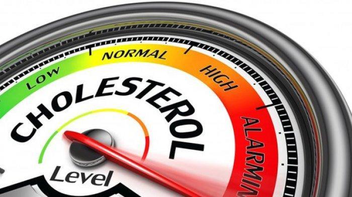 5 Gejala Kolesterol Anda Naik yang Sering tak Disadari