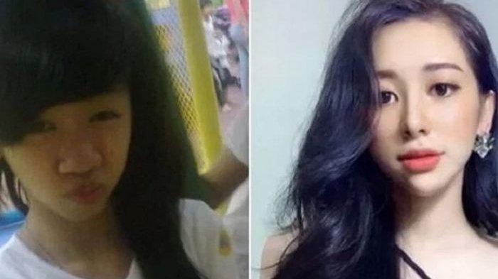 Malu Sang Pacar Tak Mengakuinya saat Hadir di Pesta Teman, Gadis Ini Operasi Plastik Setelah Putus