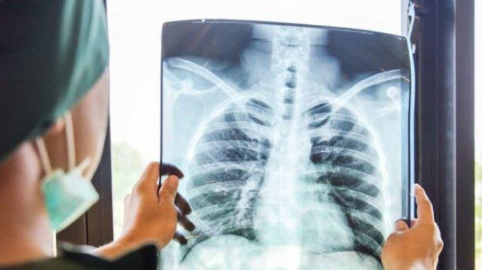 Mau Paru-paru Anda Kuat Melawan Virus Corona? Konsumsi Bahan Makanan Ini