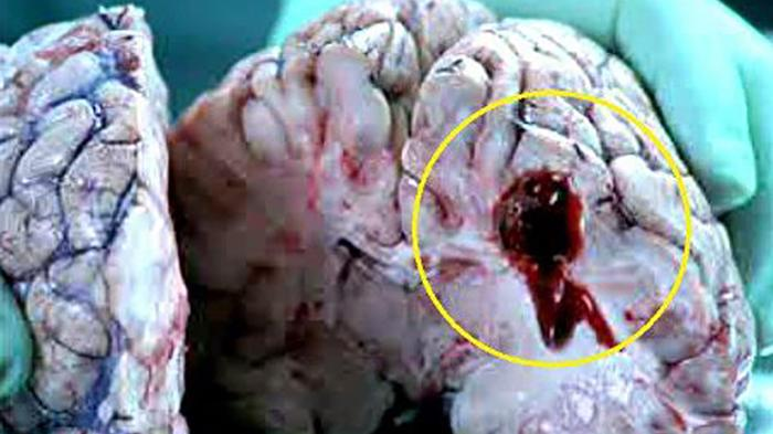 Tukul Arwana Alami Pendarahan Otak, Kenali Penyebab dan Ciri-cirinya